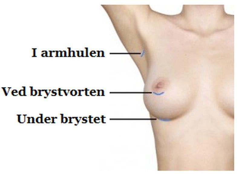 placering af snit til implantat