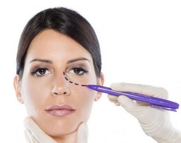 Øjenlågsoperationer
