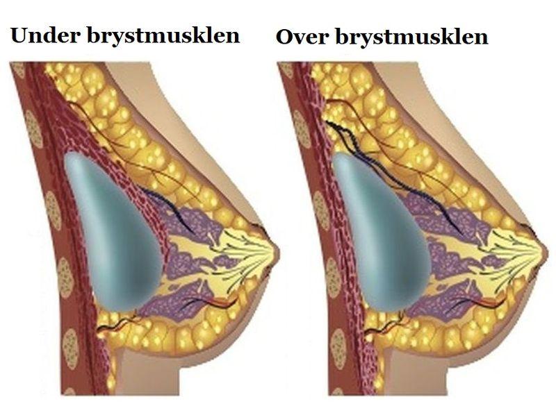 placering af brystimplantat