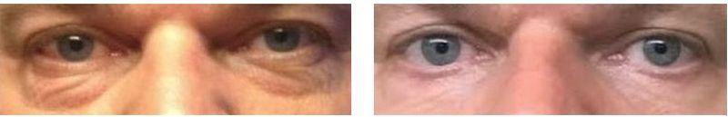 poser under øjnene før og efter operation