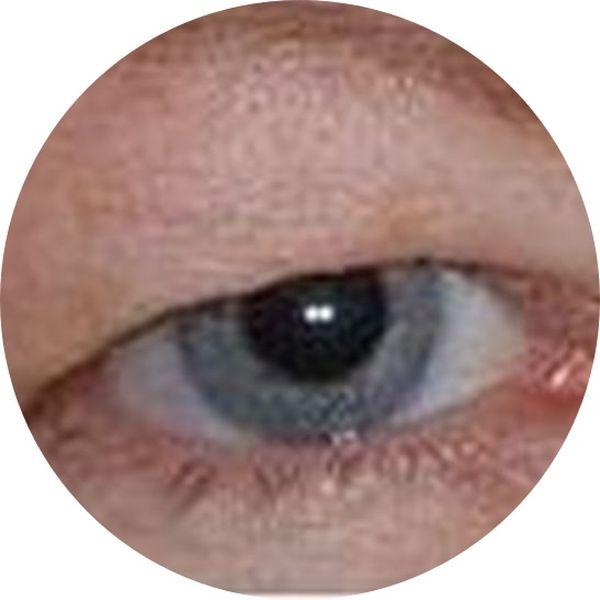 Fjernet tunge øjnelåg