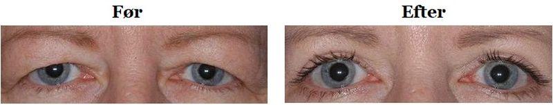 tunge øjenlåg før og efter operation