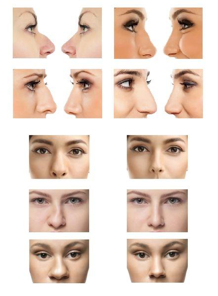 Før og efter billeder næsekorrektion
